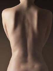 Osteoporoza, hoţul tăcut
