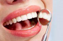 coroana dentară