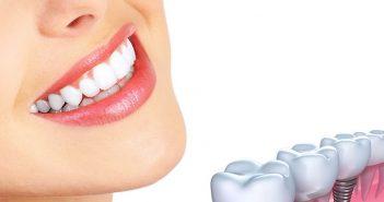 un implant dentar